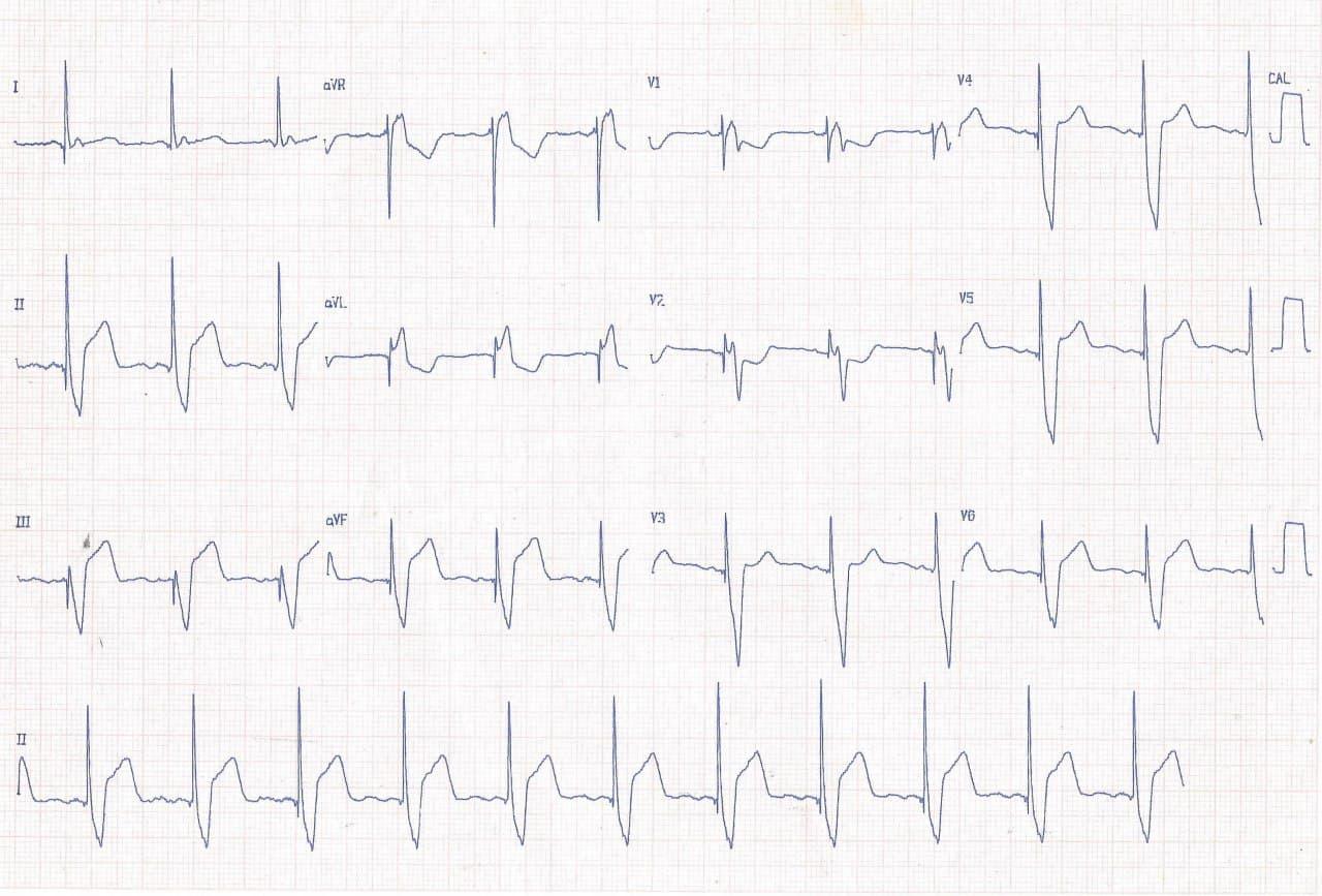 Paciente con MP implantado previamente que consulta por episodio de ángor cuyo ECG muestra signo de Sgarbosa + en V2 por compromiso de arteria Cx