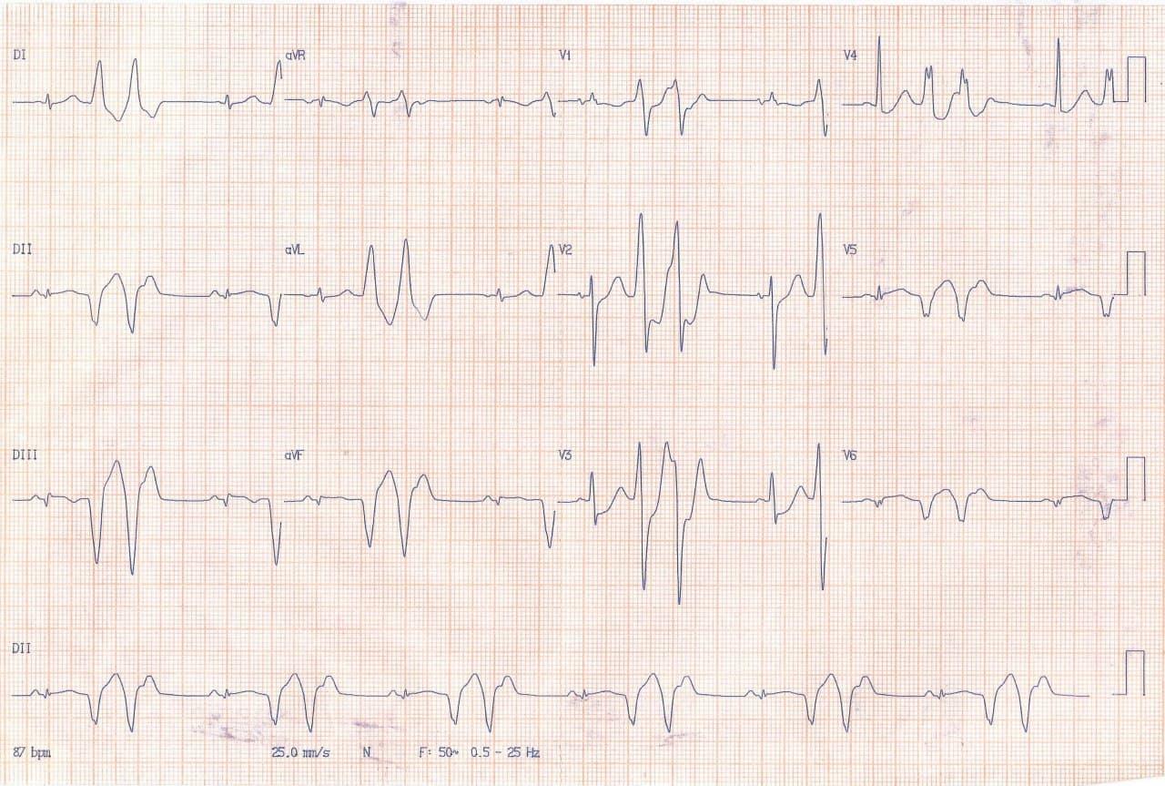 Paciente de 56 años con síncope precedido por palpitaciones por presencia de TV originada en escara  ínferolateral