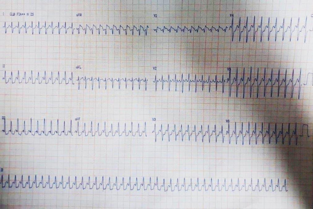 Paciente de 48 años cuya esposa refiere ser portador de FA crónica que presenta intensas palpitaciones por aleteo auricular 1:1 que pasa a ser 2:1 con inyección de adenosina