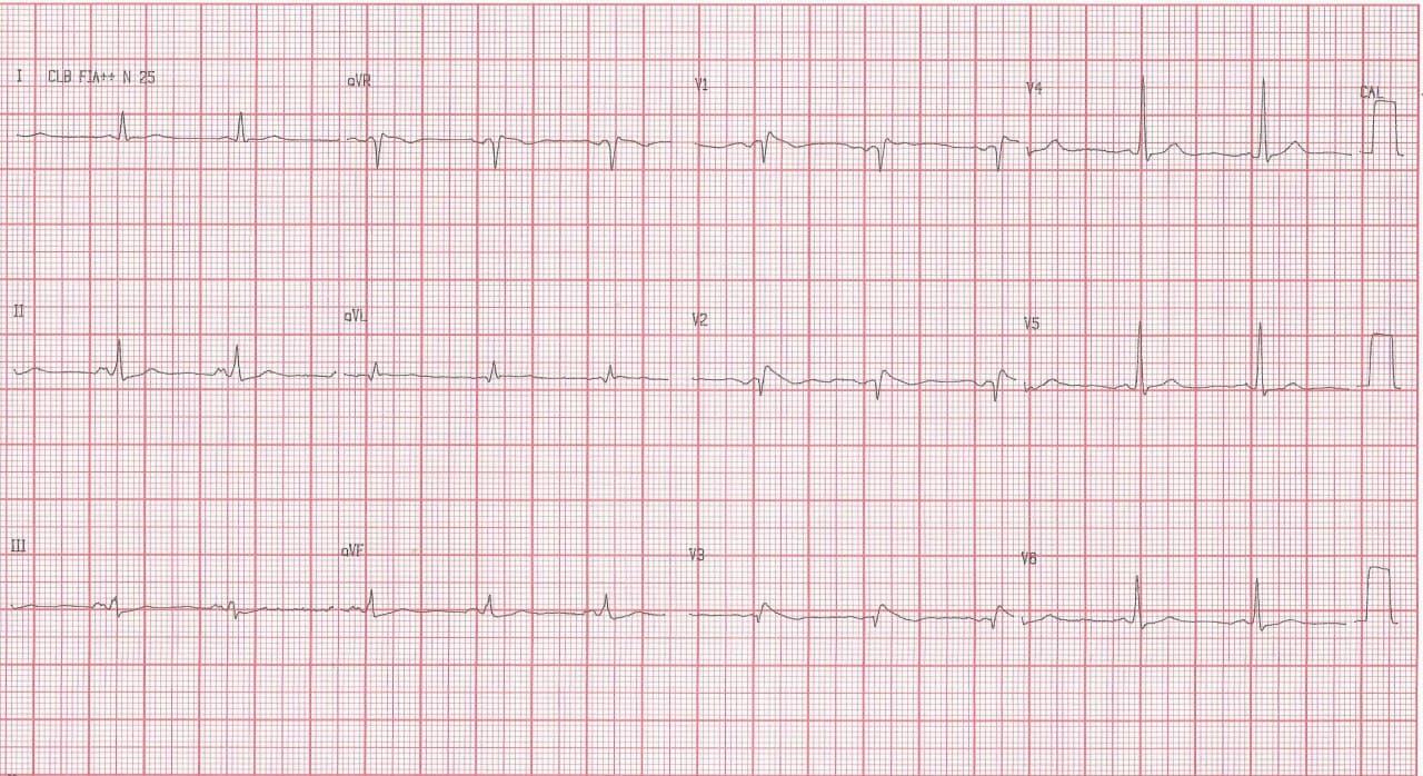 Paciente masculino de 75 años hipertenso y diabético que consulta por epigastralgia debida a gastritis comprobada endoscópicamente que es erróneamente interpretada como debida a infarto de miocardio en portador de patrón Brugada tipo I con troponina y CCG normales