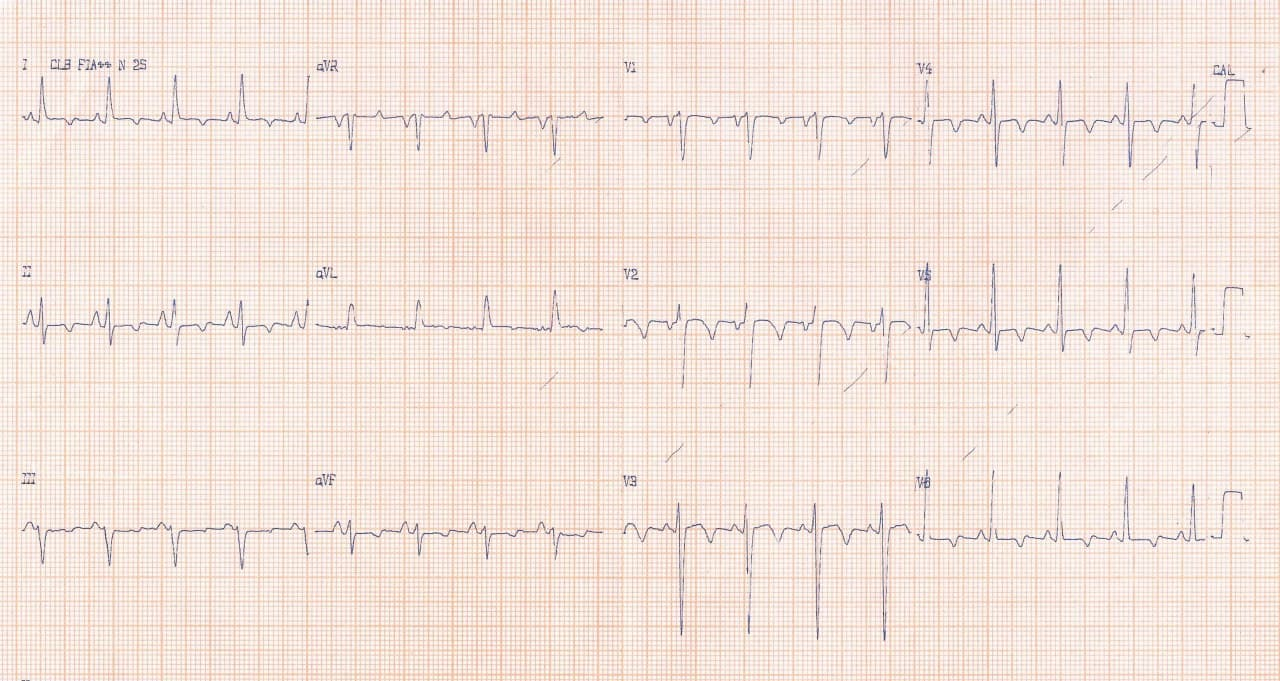 Mujer de 37 años que posteriormente a cursar con un cuadro febril, con tos y disnea diagnosticado como «neumonía» desarrolla insuficiencia cardíaca constatándose la presencia de una miocardiopatía dilatada con signos de miocarditis aguda