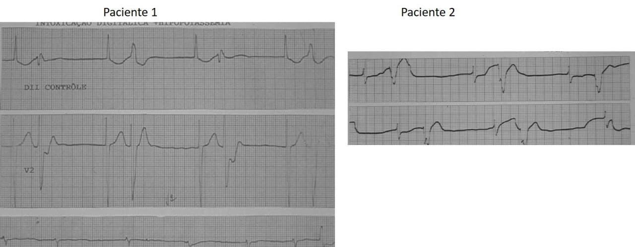 Sendos ECGs de dos pacientes con bigeminia escape captura por intoxicación digitálica y FA como ritmo de base