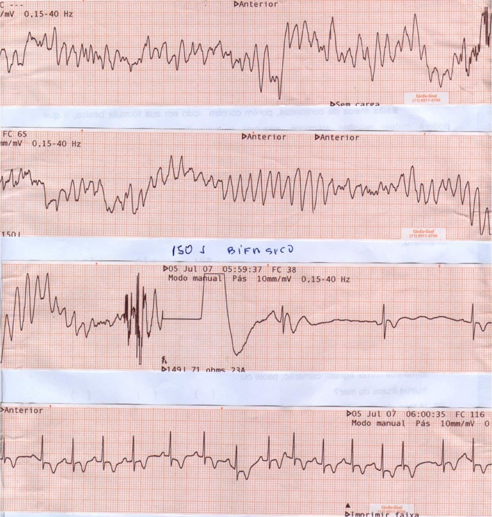 Mujer de 77 años, hipertensa previa que presenta episodio de ángor prolongado que evoluciona a FV que es revertida, constatándose CCG normal, por síndrome de TakoTsubo