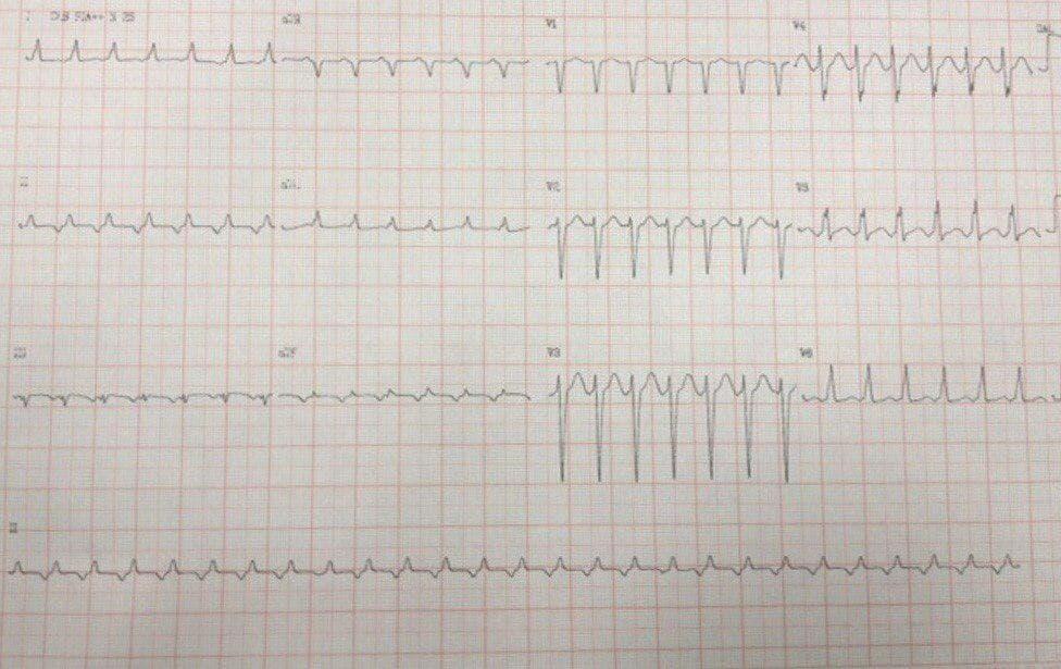 ECG de paciente que presenta taquicardia de QRS estrecho por taquicardia auricular con RP largo con buena respuesta a adenosina y reinicio de la arritmia al cesar efecto de la droga