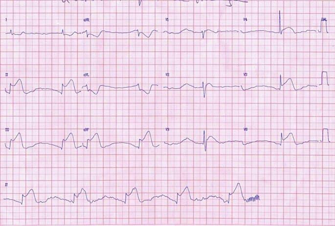 Paciente masculino de 71 años, hipertenso que presenta episodio de ángor prolongado por IAM inferior con compromiso de VD debido a oclusión 100% de CD