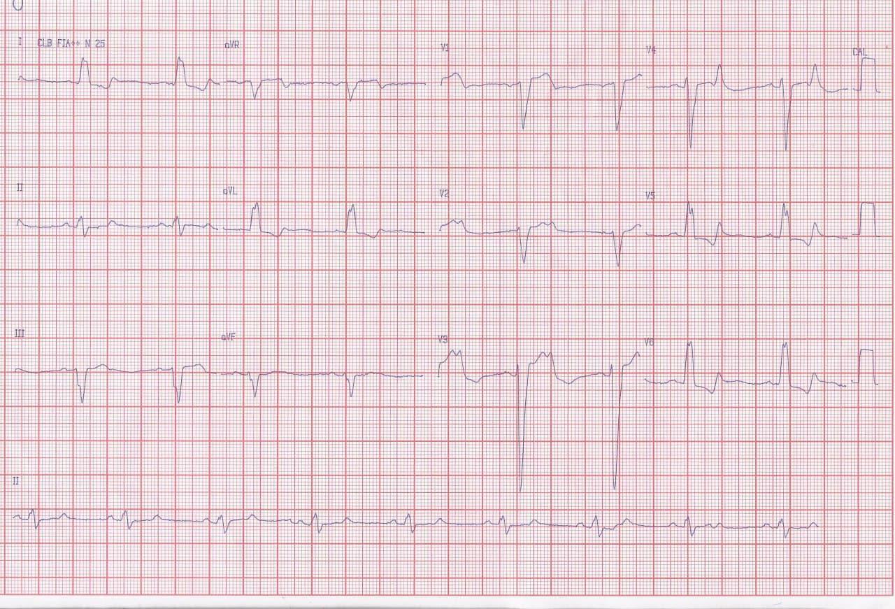 Hombre de 67 años con factores de riesgo que presenta disnea y ángor progresivos con BCRI + Bloqueo AV 2:1 por suboclusión de CD proximal