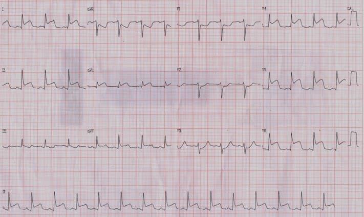 ECG de paciente con SCA por compromiso de arteria marginal de la Cx