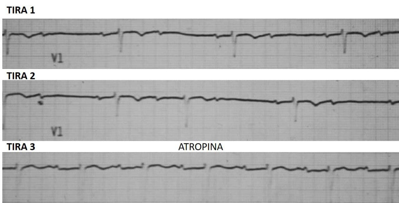 ECG que muestra BAV de alto grado que post atropina presenta mejora de la conducción AV