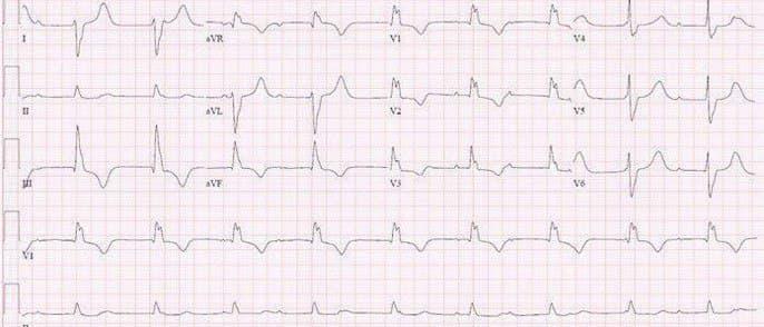 Hombre de 39 años oriundo de Canadá que presenta episodios sincopales cuyo ECG muestra BAVC con complejos anchos de BCRD + BFPI con serología reactiva para enfermedad de Lyme que es tratada con buena evolución electrocardiográfica