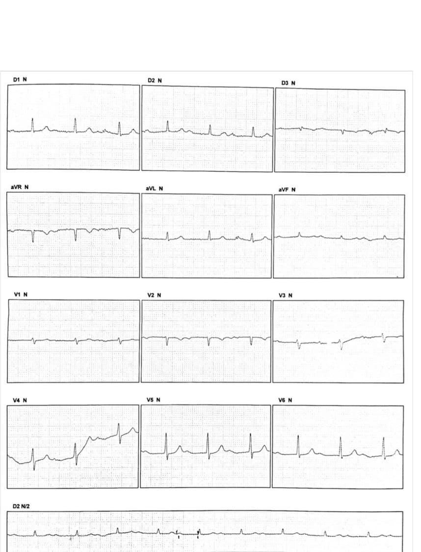 Trazado de paciente de 64 años asintomático que presenta PRs variables de latido a latido por presencia de doble vía nodal