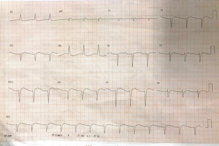 Paciente masculino de 69 años portador de FA crónica tratado con digoxina que presenta insuficiencia cardíaca con incremento de la disnea en los últimos días que presenta ritmo de la unión y EV bigeminada por intoxicación digitálica