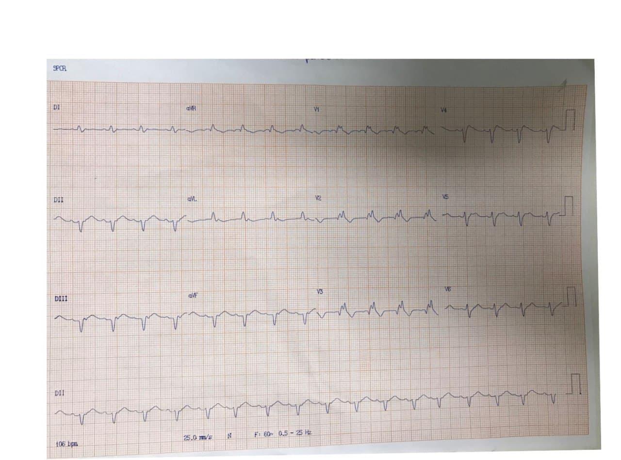 Paciente de 62 años hipertenso y diabético que presenta episodio de ángor prolongado seguido de FV de la cuál es recuperado con CVE por compromiso de la DA