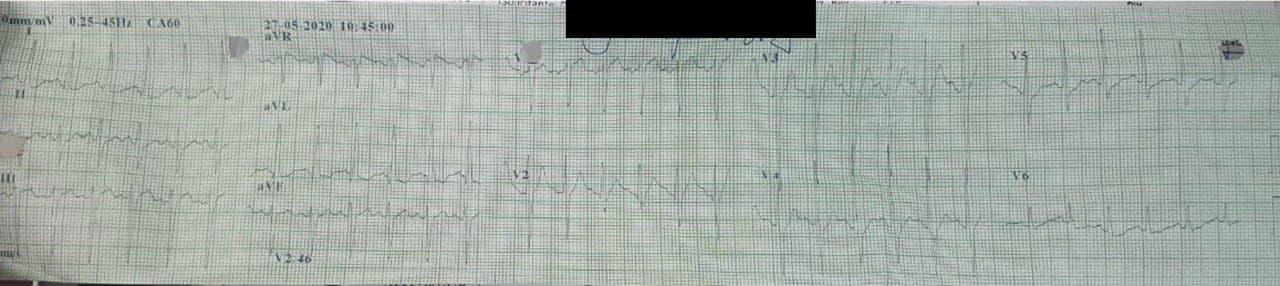 Hombre de 62 años hospitalizado por COVID 19 que manifiesta  dificultad respiratoria, inquietud y desasosiego por TEP con signos de disfunción de VD (trazados de pobre calidad)