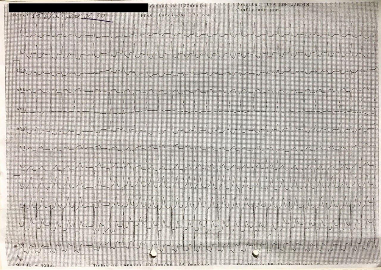 Mujer de 68 años, HTA tratada irregularmente que cursa con episodio de ángor prolongado, con arterias coronarias angiográficamente normales en quién se constata estenosis aórtica severa