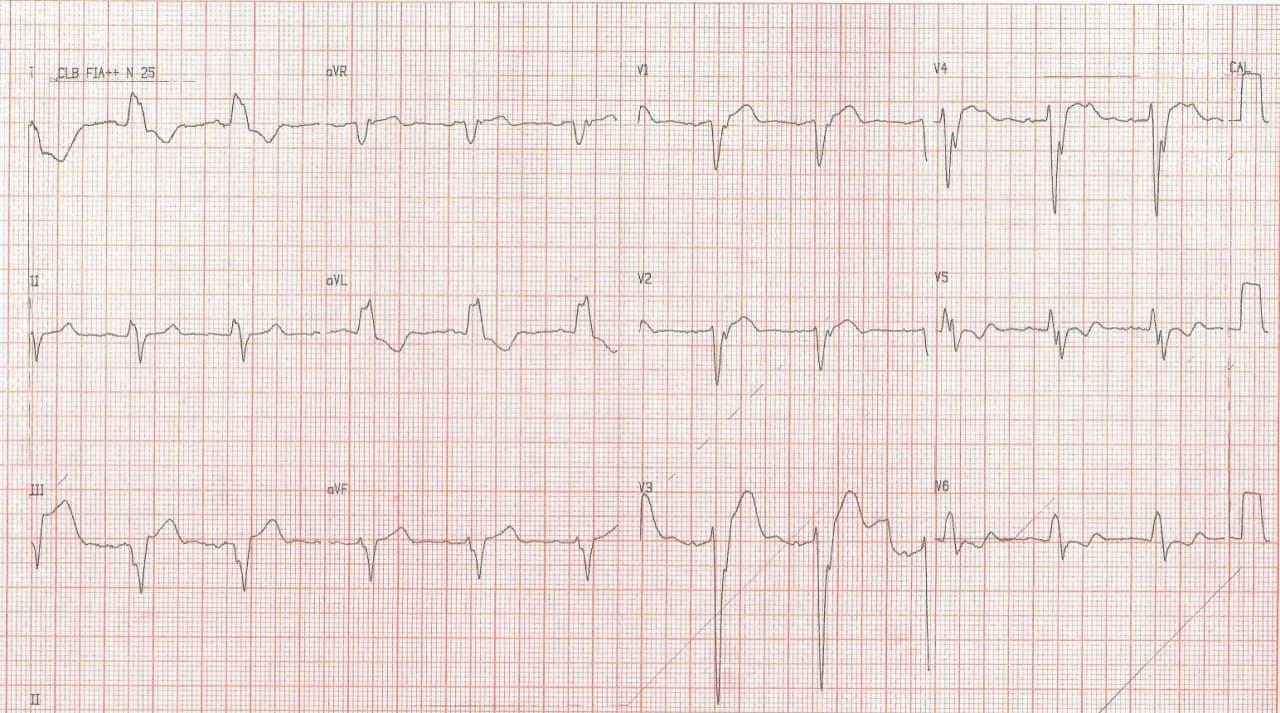 Paciente con cuadro de insuficiencia cardíaca y BCRI crónicos en cuyo ECG se observa signo de Cabrera, indicativo de enfermedad coronaria crónica subyacente
