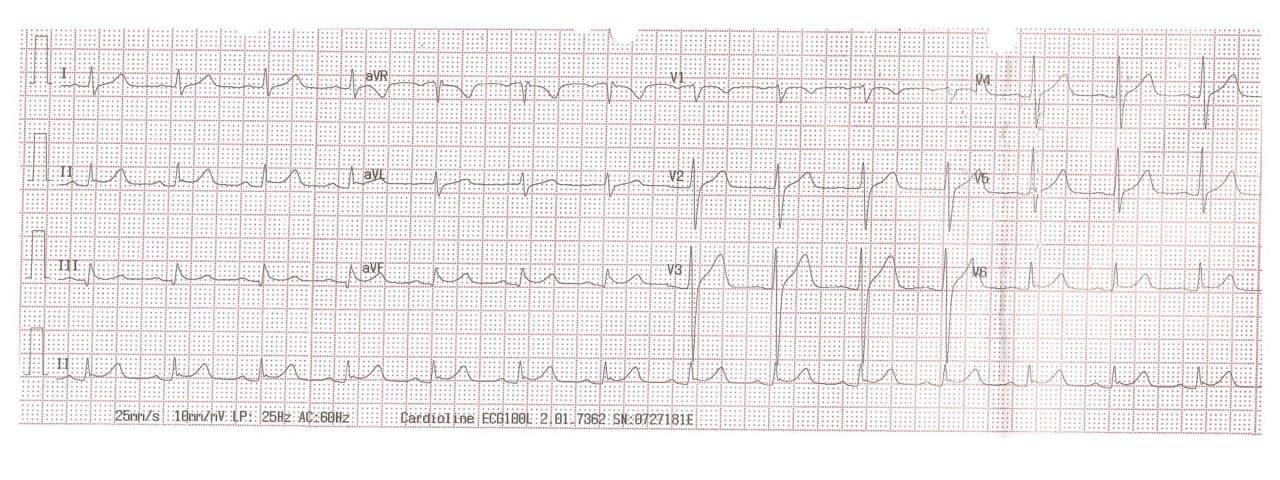 Paciente masculino de 37 años que ingresa a Emergencias en paro cardiorespiratorio debido a FV que es revertida, constatándose ECG compatible con Repolarización Precoz maligna
