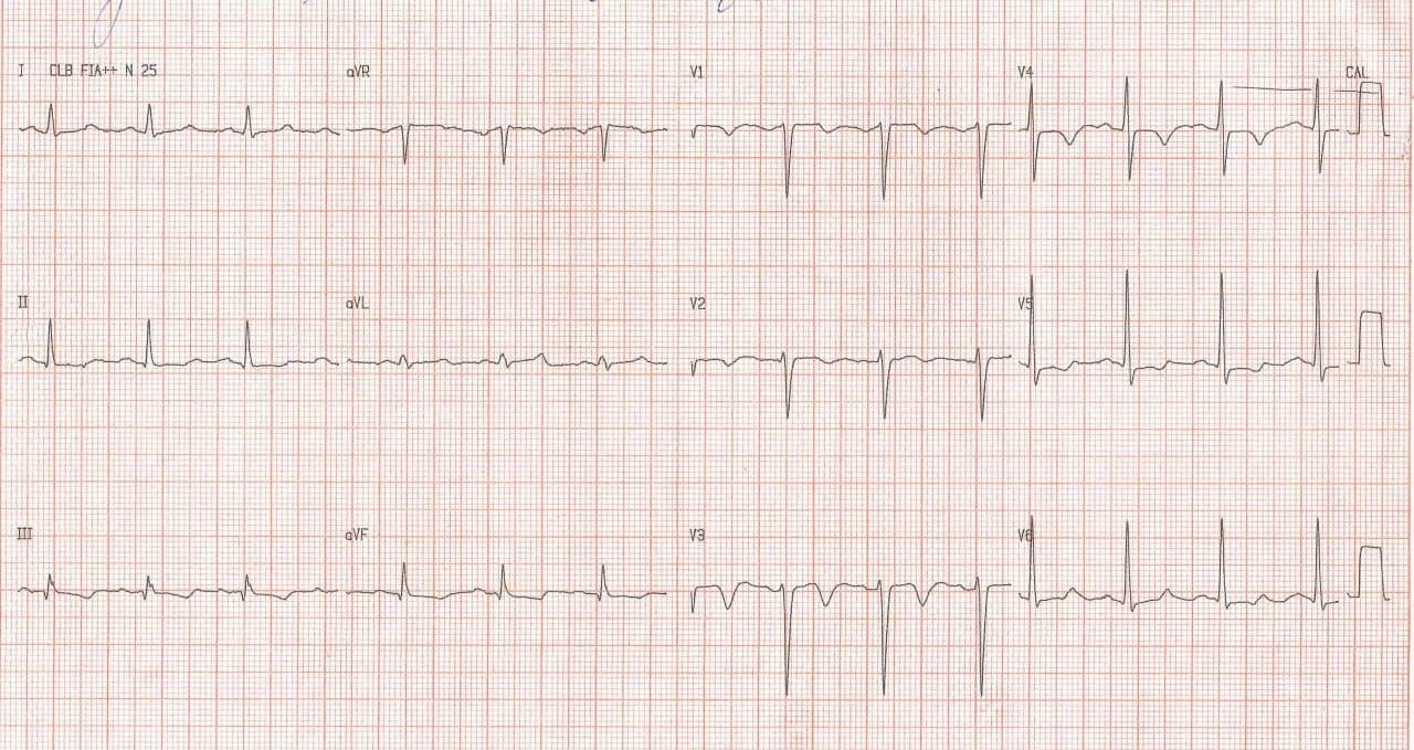 Hombre de 68 años, HTA, asintomático, que realiza ECG de rutina que presenta BCRI intermnitente en fase 3, con ondas T negativas expresión de memoria cardíaca