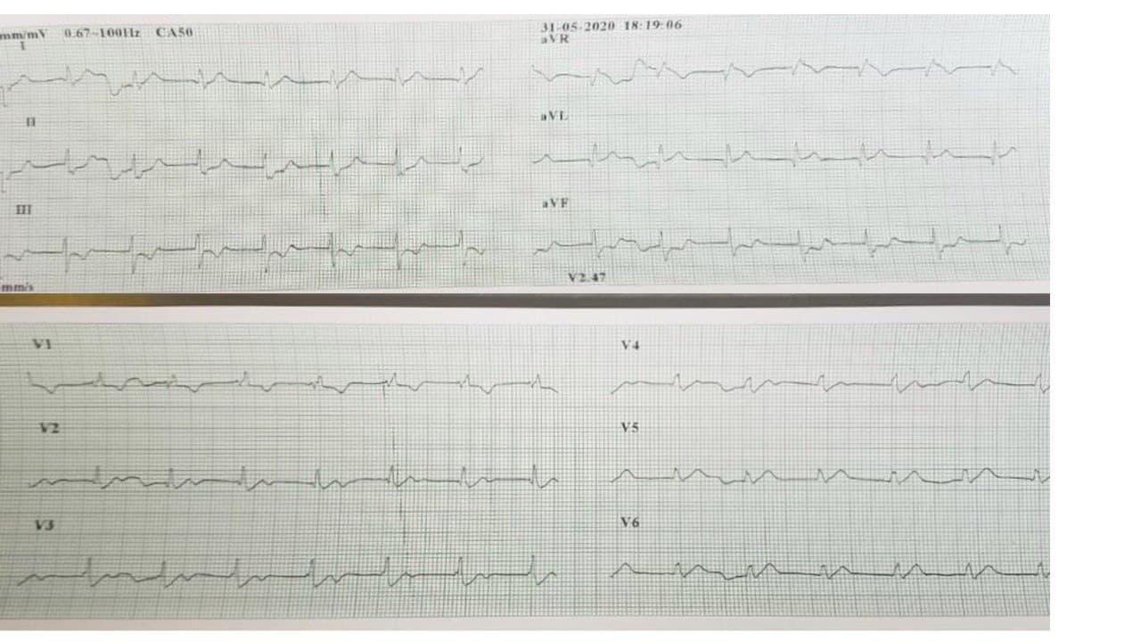 Hombre de 38 años con episodio de ángor que presenta un ECG típico de lesión de TCI por presencia de oclusión con trombo que se extiende a nacimiento de DA y Cx