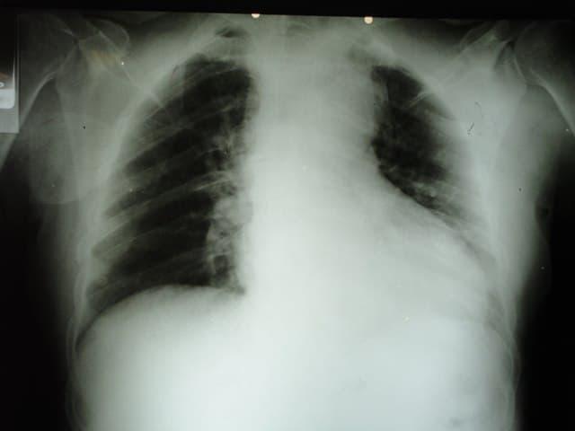 Paciente masculino hipertenso de 62 años con pérdida fugaz de la consciencia que presenta disección aórtica tipo A