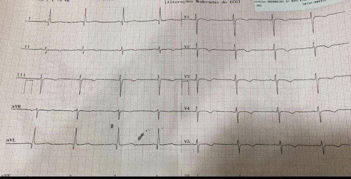 Paciente de 51 años COVID 19 tratado con azitromicina + hidroxicloroquina que desarrolla QTLc
