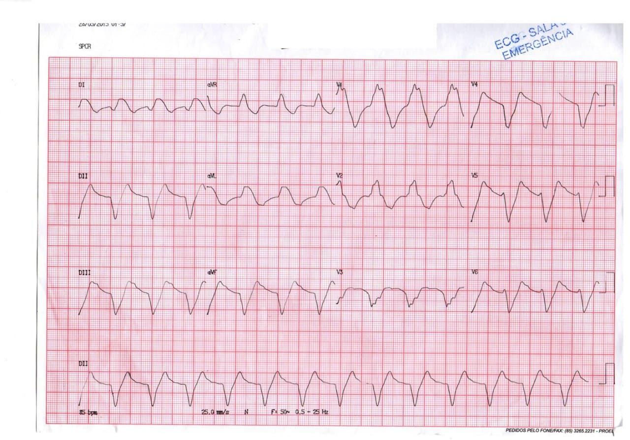 Paciente que padece diabetes y enfermedad de Chagas que cursa con severa hiperpotasemia atribuible a su medicación cuyo ECG mejora al corregirse el trastorno electrolítico