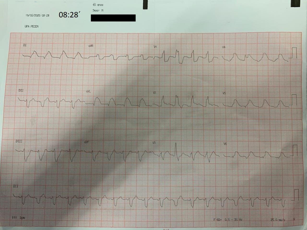 Paciente masculino de 45 años que ingresa en shock cardiogénico por SCA con BCRD + HbAI por probable lesión de TCI que fallece